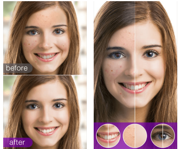 11 Best teeth whitening apps for Android & iOS | Free apps